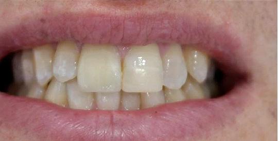 veneers restoration of a broken anterior tooth 01