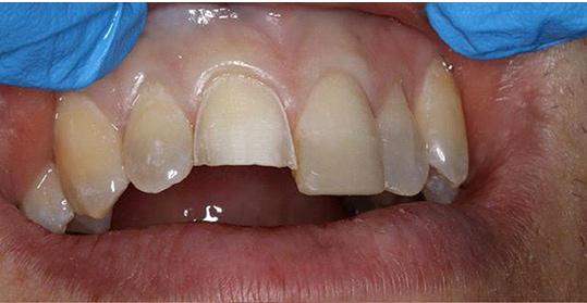 veneers restoration of a broken anterior tooth
