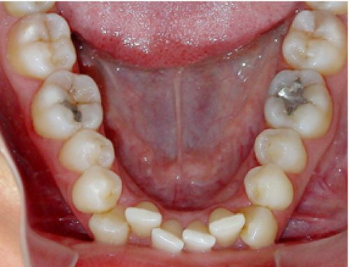 Are wisdom teeth the cause of late crowding?