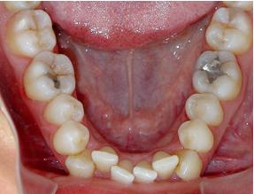 wisdom teeth and late crowding
