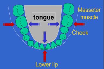 wisdom teeth vs late crowding
