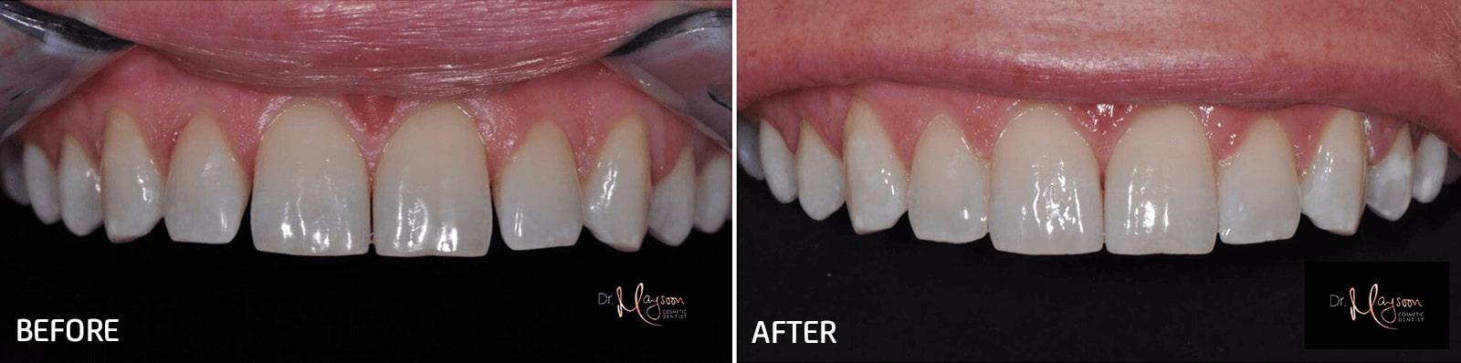 close gaps between teeth dr tosun dental clinic