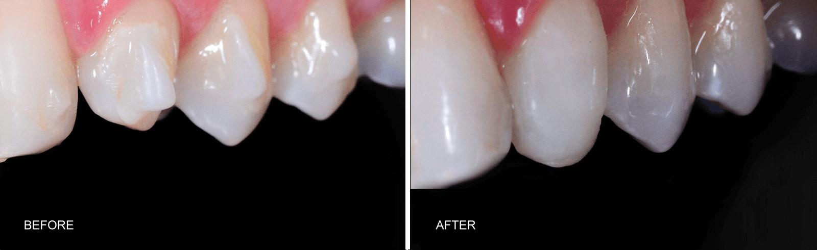 composite bonding anterior tooth dr tosun dental clinic