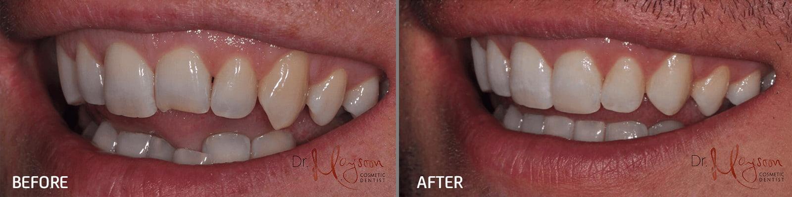 cosmetic bonding dr tosun dental clinic