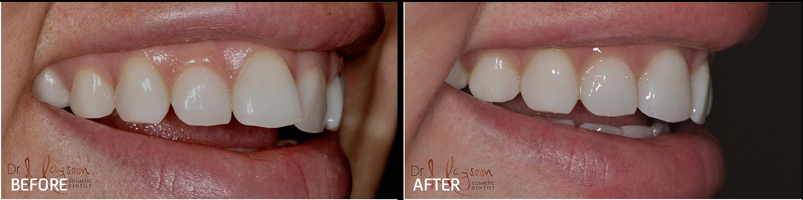 inman aligner to straighten upper front teeth dr tosun dental clinic