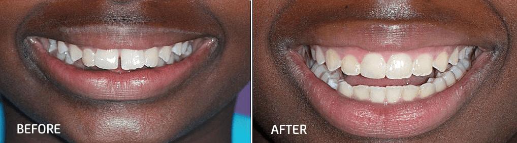 orthodontic smile gallery dr bosun dental clinic 01