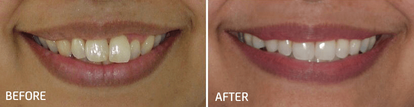 orthodontic smile gallery dr bosun dental clinic 03