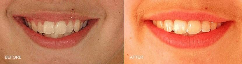 orthodontic smile gallery dr bosun dental clinic 06
