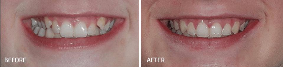 orthodontic smile gallery dr bosun dental clinic 10