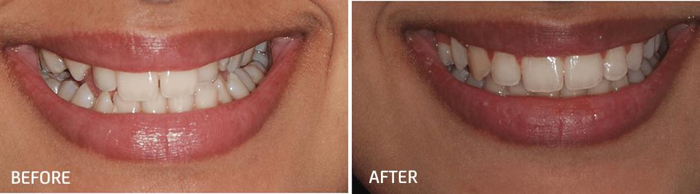 orthodontic smile gallery dr bosun dental clinic