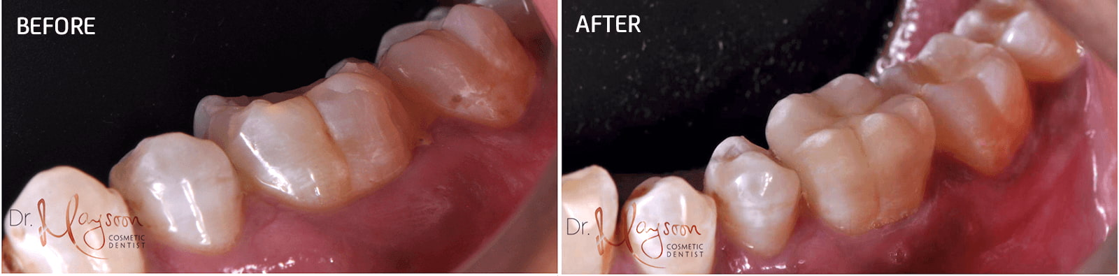 porcelain onlay to restore tooth shape aesthetics dr tosun dental clinic