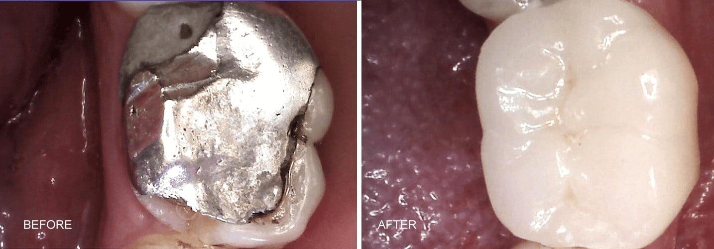 replace amalgam filling with ceramic onlay dr tosun dental clinic (1)