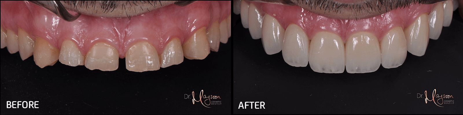 smile makeover with porcelain veneers crowns dr tosun dental clinic
