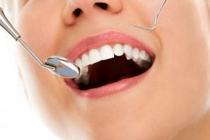 what dental cleaning involve