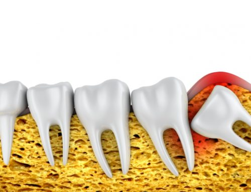 How to Prepare for Wisdom Tooth Removal?