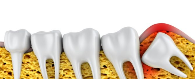 how to prepare for wisdom tooth removal