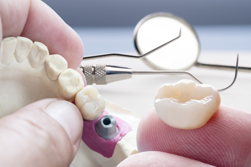 what should i know before dental implants