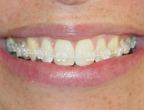 What is the Difference Between Invisalign Clear Aligners and Clear Braces?