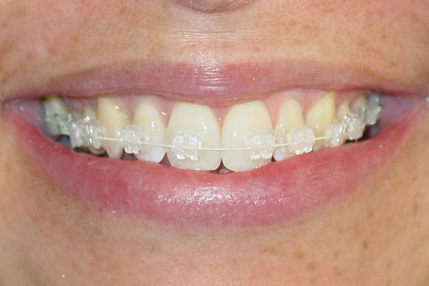 difference between invisalign clear aligners and clear braces