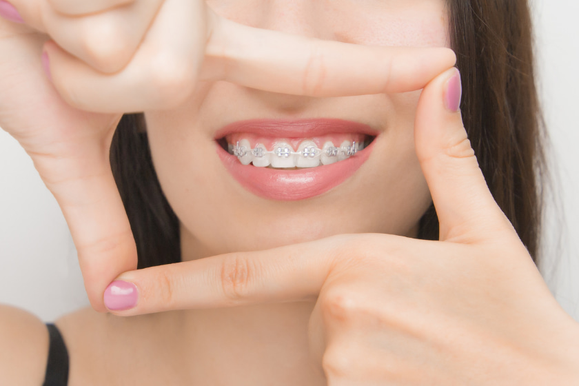 what are clear braces dr tosun dental